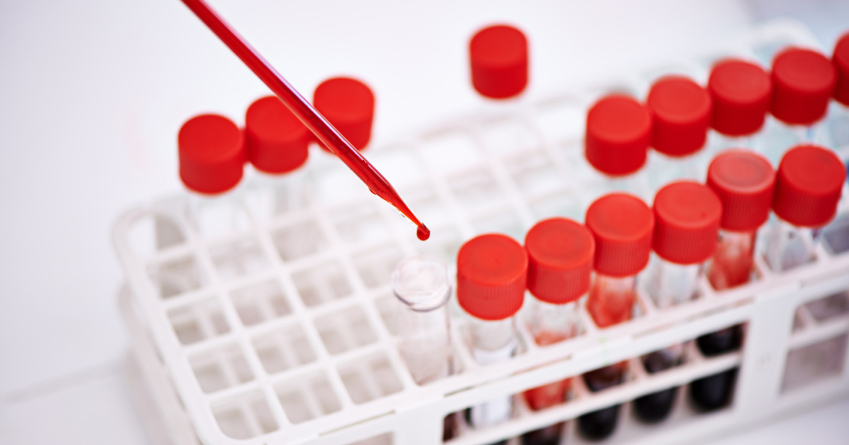 Closeup shot of a scientist working with blood samples in the lab